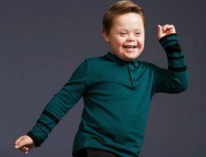 Joseph Hale - Downs Syndrome Model